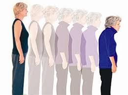 Osteoporoza in prehranska dopolnila